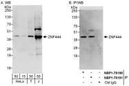 NBP1-78191 - ZNF444