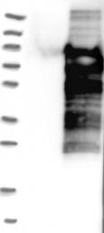 NBP1-87389 - ZSCAN18