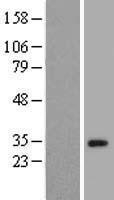 NBL1-18167 - ZNF501 Lysate