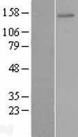NBL1-18170 - ZNF521 Lysate