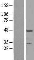 NBL1-18184 - ZNF558 Lysate