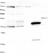 NBP1-82222 - ZNF566