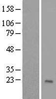 NBL1-18194 - ZNF576 Lysate