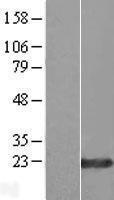 NBL1-18196 - ZNF580 Lysate
