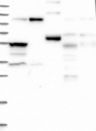 NBP1-84658 - ZNF598