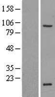 NBL1-18207 - ZNF606 Lysate