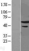 NBL1-18211 - ZNF622 Lysate