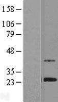 NBL1-18212 - ZNF625 Lysate