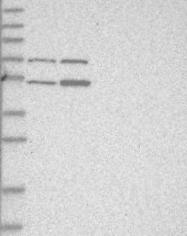 NBP1-82215 - ZNF642