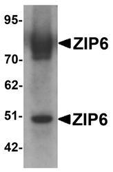 NBP1-76503 - Zinc transporter ZIP6 / SLC39A6