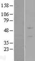 NBL1-18220 - ZNF669 Lysate