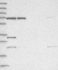 NBP1-93452 - ZNF674
