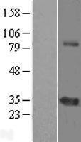 NBL1-18230 - ZNF691 Lysate
