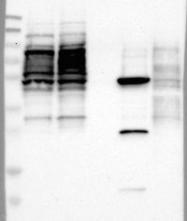 NBP1-82211 - ZNF782