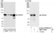 NBP1-78199 - ZNF800