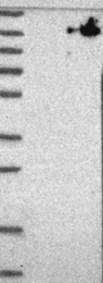 NBP1-88403 - CHAMP1 / ZNF828