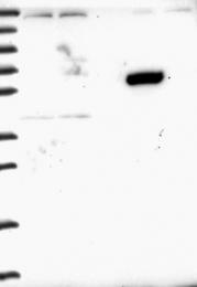 NBP1-90888 - ZNF837