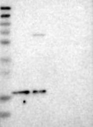 NBP1-85673 - ZNHIT1