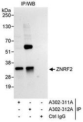 NBP1-28697 - ZNRF2 / RNF202