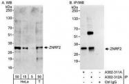 NBP1-28715 - ZNRF2 / RNF202