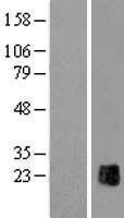 NBL1-18263 - ZP2 Lysate