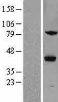 NBL1-18264 - ZPBP1 Lysate