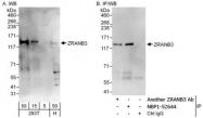 NBP1-52644 - ZRANB3