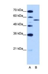 NBP1-57317 - ZRSR2