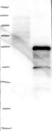 NBP1-85184 - ZSCAN16