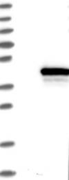 NBP1-82868 - ZW10 interactor / ZWINT