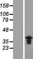 NBL1-18277 - ZWINT Lysate