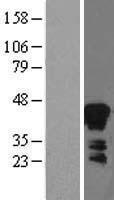 NBL1-07871 - Zinc Alpha 2 Glycoprotein Lysate
