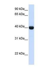 NBP1-57671 - Alcohol dehydrogenase 1A (ADH1)