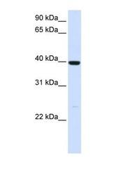 NBP1-57672 - Alcohol dehydrogenase 1A (ADH1)