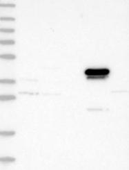 NBP1-90233 - Alcohol dehydrogenase 4 (ADH4)