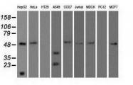 NBP1-47957 - Alpha-1-antitrypsin