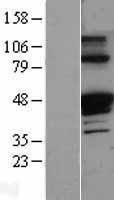 NBL1-15833 - alpha 1 Antitrypsin Lysate
