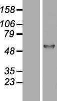 NBL1-15834 - alpha 1 Antitrypsin Lysate