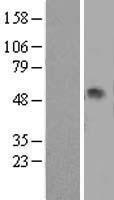 NBL1-15835 - alpha 1 Antitrypsin Lysate
