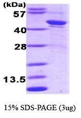 NBC1-18549 - Alpha-1-antitrypsin