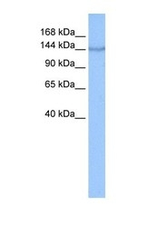 NBP1-59297 - Coatomer subunit alpha (COPA)