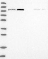 NBP1-89806 - Alpha-glucosidase 2  / GANAB