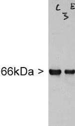 NB300-140 - Alpha-Internexin