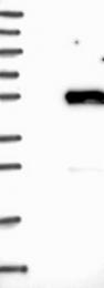 NBP1-90306 - SGCA (Alpha-sarcoglycan)
