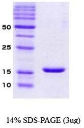 NBC1-07002 - Alpha-Synuclein / SNCA