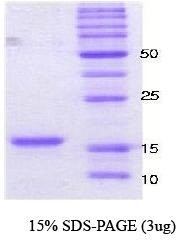 NBC1-18320 - Alpha-Synuclein / SNCA