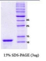 NBC1-18324 - Alpha-Synuclein / SNCA