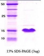 NBC1-18325 - Alpha-Synuclein / SNCA