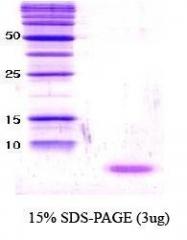 NBC1-18326 - Alpha-Synuclein / SNCA