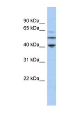 NBP1-53014 - alpha Tubulin / TUBA3C / TUBA2